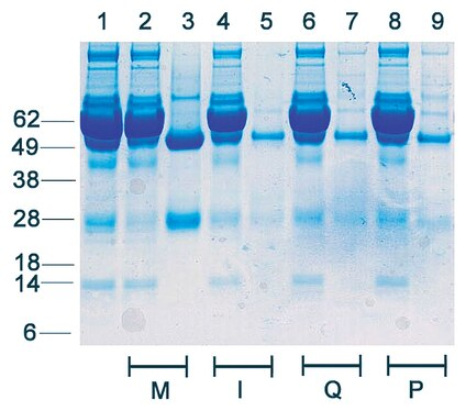 Depletion Profile: Rabbit Serum (50 µL) diluted with PBS was incubated with Protein G magnetic beads per manufacturer's instructions.  The depleted rabbit serum samples were separated by SDS-PAGE and the gel stained with Coomassie Blue using Millipore and competitor magnetic beads.  Lane 1: input material, lanes 2, 4, 6, 8: depleted samples, lanes 3, 5, 7, 9: eluted samples.